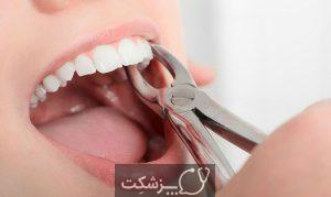 تورم لثه در اطراف دندان | پزشکت