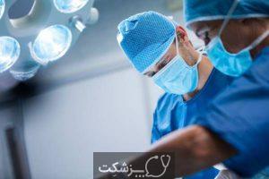 عمل جراحی لازیک | پزشکت