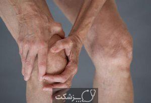 درد زانو | پزشکت