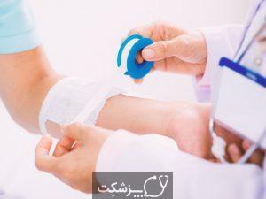 سوختگی | پزشکت