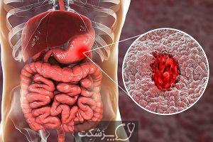 استفراغ خونی | پزشکت