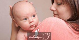 رفلاکس نوزاد   پزشکت
