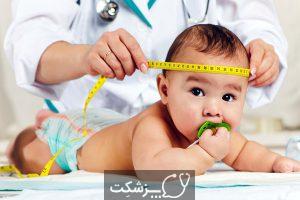 ماکروسفالی | پزشکت