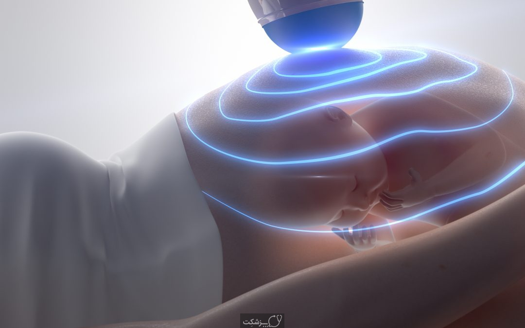 سونوگرافی دوران بارداری | پزشکت