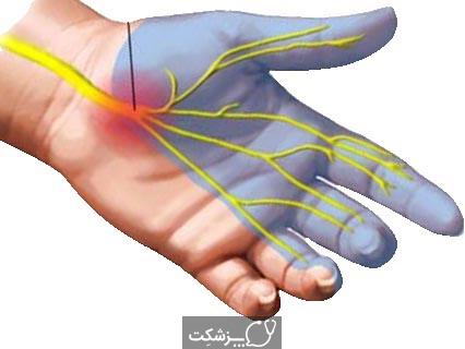 سندرم تنگی کانال مچ دست | پزشکت | پزشکت