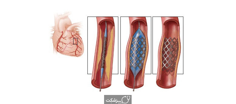 آنژیوپلاستی کرونر | پزشکت