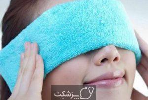 خشکی چشم | پزشکت