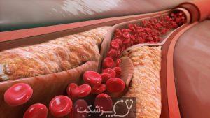 افزایش کلسترول خون | پزشکت