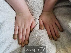 ناخن جویدن | پزشکت