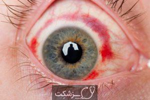 خون ریزی زیر ملتحمه | پزشکت