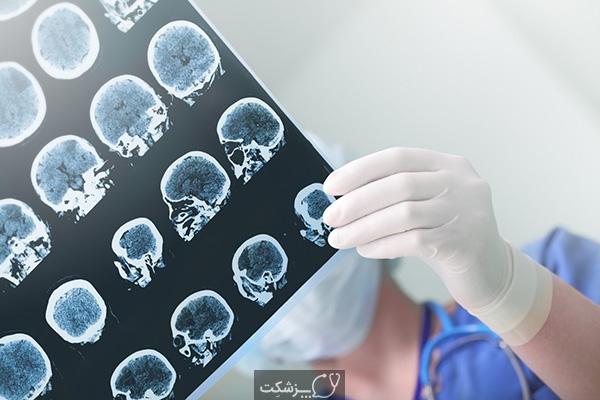 عوارض جانبی داروهای ضد تشنج | پزشکت