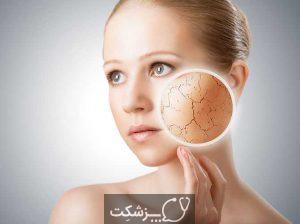 خشکی پوست | پزشکت