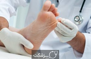 سندرم پا های بی قرار   پزشکت