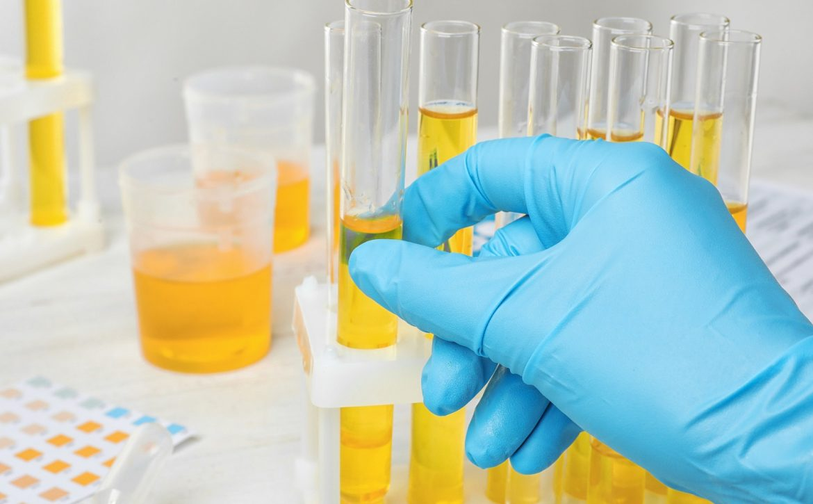 Laboratory worker taking test tube with urine sample from holder, closeup. Urology concept