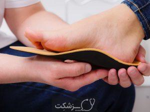 صافی کف پا | پزشکت