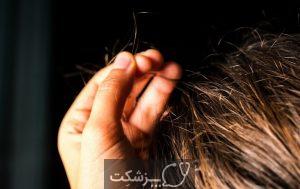 اختلال در کشیدن مو | پزشکت