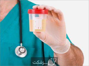 دستگاه ادراری | پزشکت