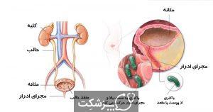 عفونت ادراری | پزشکت