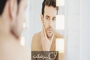 روشن سازی پوست | پزشکت