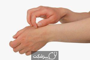 بیماری گال یا جرب | پزشکت