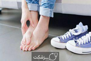 زگیل کف پا | پزشکت