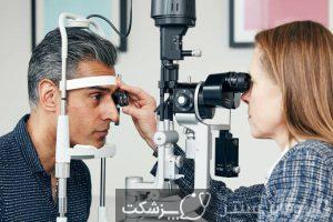 دیستروفی قرنیه | پزشکت