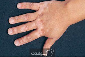 بیماری پیسی | پزشکت