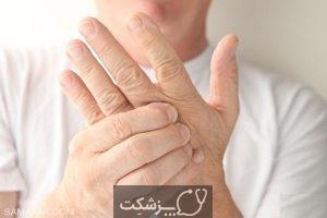 مسومیت با جیوه | پزشکت
