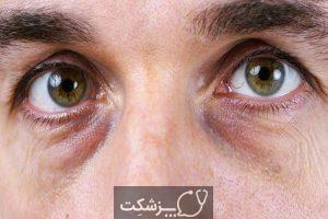 کبودی دور چشم | پزشکت