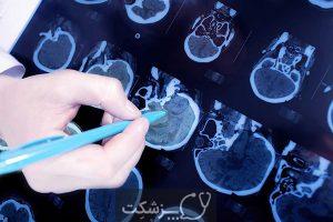 سیستم عصبی | پزشکت