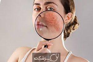 بیماری پوستی روزاسه | پزشکت