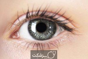 لکه های شناور چشمی | پزشکت