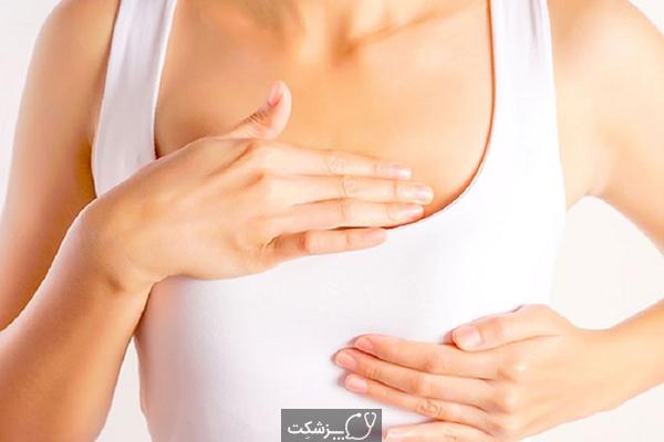 موارد کاربرد پروتز سینه | پزشکت