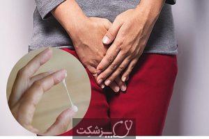 IUD ها | پزشکت