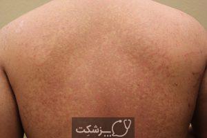 بیماری پوستی تینه آ ورسیکالر | پزشکت