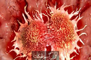 سرطان مقعد| پزشکت
