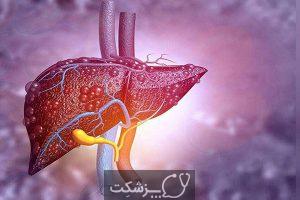 علائم بیماری های کبد | پزشکت