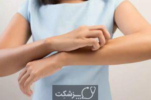 آلرژی نیکل | پزشکت