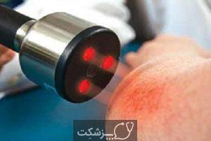 گرانولوم حلقوی | پزشکت