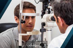 بیماری هیالوز ستاره ای | پزشکت