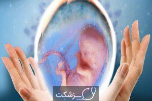 سقط جنین مکرر | پزشکت