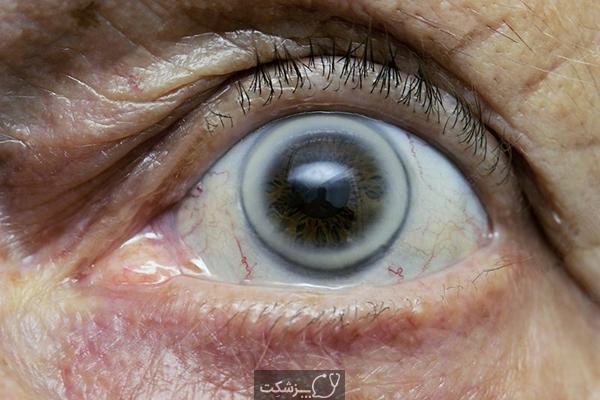قوس پیری قرنیه | پزشکت