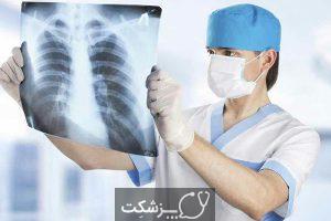 بیماری مرکل سل کارسینوما | پزشکت