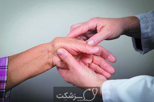 اسکلرودرمی| پزشکت