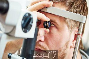 التهاب عصب بینایی | پزشکت