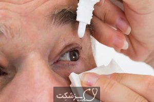 اختلالات چشمی | پزشکت