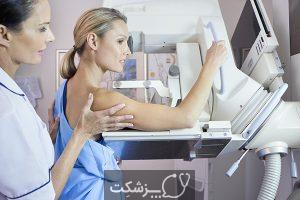 تقارن سینه ها | پزشکت