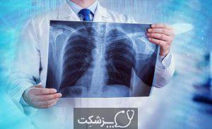 آمفیزم | پزشکت