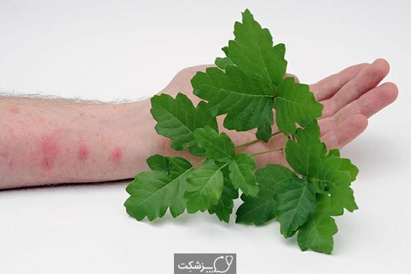 ضایعات پوستی ناشی از پیچک سمی | پزشکت