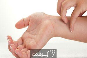 خارش در دوران بارداری | پزشکت